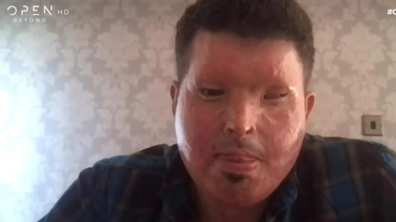 Συγκλονίζει ο Ανδρέας Χριστοφέρος: Mιλά για την επίθεση με οξύ που δέχτηκε και στέλνει μήνυμα στην Ιωάννα Παλιοσπύρου